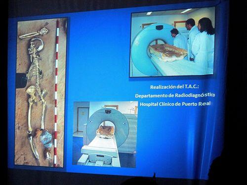 TAC A ESQUELeto tardorromano en barcelona paleontologia paleopatologia arqueologia